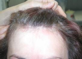 ekcéma fejbőr kezelés